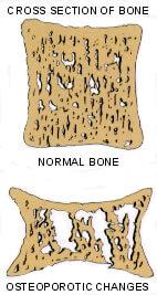 osteoporosis5