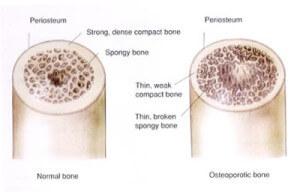 osteoporosis8